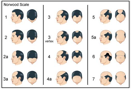 norwood scale man hair problems